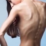 Zaburzenia odżywiania – współczesny problem